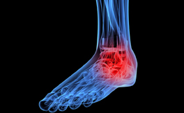 Concept image for ankle injuries shows an x-ray of a foot with red coloring in the ankle area