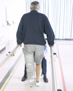 Interior view of an older man with a prosthetic leg undergoing physical rehabilitation in a hospital