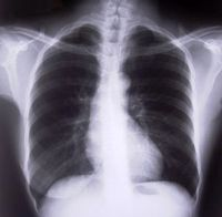 A chest X-Ray